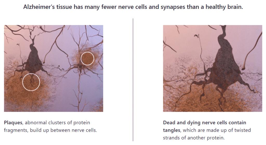 alzheimer's brain tissue